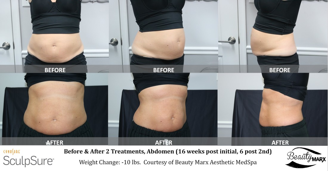 Before and After SculpSure Body Contouring Pictures at Beauty Marx in Doylestown